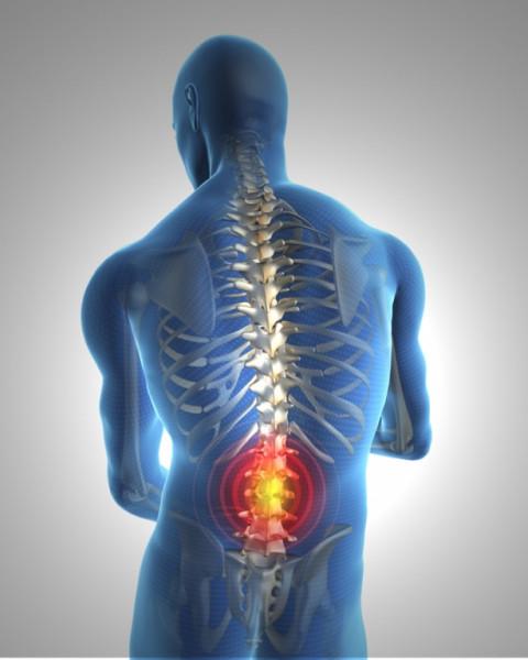 Starke Rückenprobleme durch Muskelschwäche