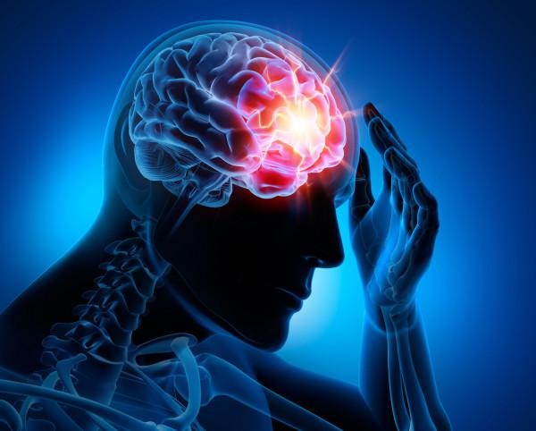 Mann-Gehirn-Schlaganfall-Kopfschmerz_F_60820828